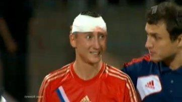 В сборной России три травмированных футболиста