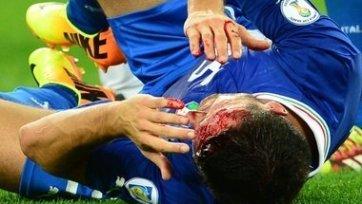 Мануэлю Паскуале наложили на голову 50 швов