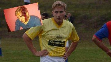 Британского футболиста цыгане едва не убили топором
