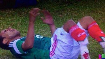 Хавбек сборной Мексики получил страшную травму и пропустит ЧМ