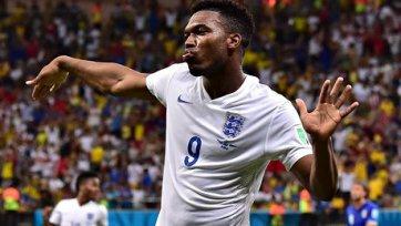 Старридж: «Я бы хотел, чтобы Суарес против Англии не сыграл»