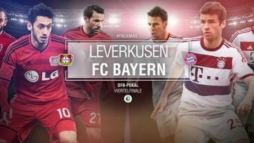 Анонс. «Байер» - «Бавария». Сможет ли Гвардиола решить кадровые проблемы?