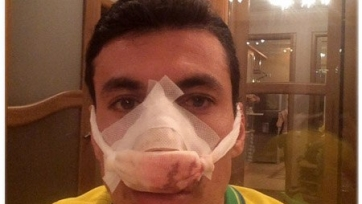 У Шандао диагностирован перелом носа