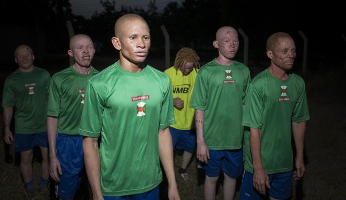 Белый шоколад. Как «Реал» и «Барселона» помогают африканским футболистам-альбиносам