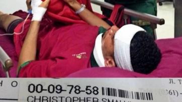 Смоллинг получил травму, занимаясь сёрфингом на Бали