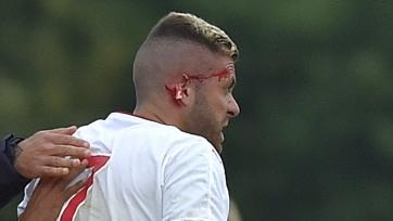 Менез потерял часть уха в дебютном матче за «Бордо»