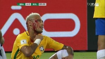 Неймару разбили лицо, когда он пытался пробросить мяч между ног соперника