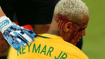 Неймар: «Травма несерьёзная, но шрам остался»