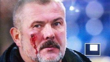 Болельщики «Днепра» избили президента «Днепра-1»