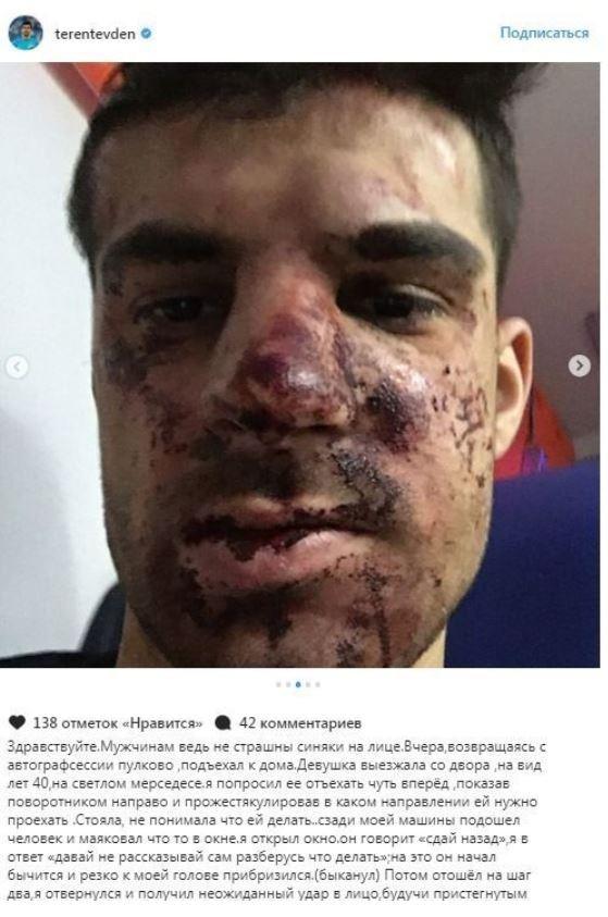 Защитник «Зенита» подробно рассказал об избиении на парковке (фото)