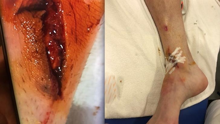 Появились фотографии ран на ноге Манджукича (фото)