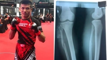 Казахстанец со сломанной ногой завоевал медаль на чемпионате мира по ММА