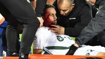Суботич получил страшную травму головы и сразу был доставлен в больницу. Фото