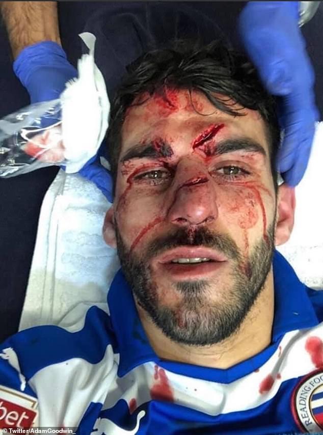 Форвард «Рединга» получил жуткую травму. Фото