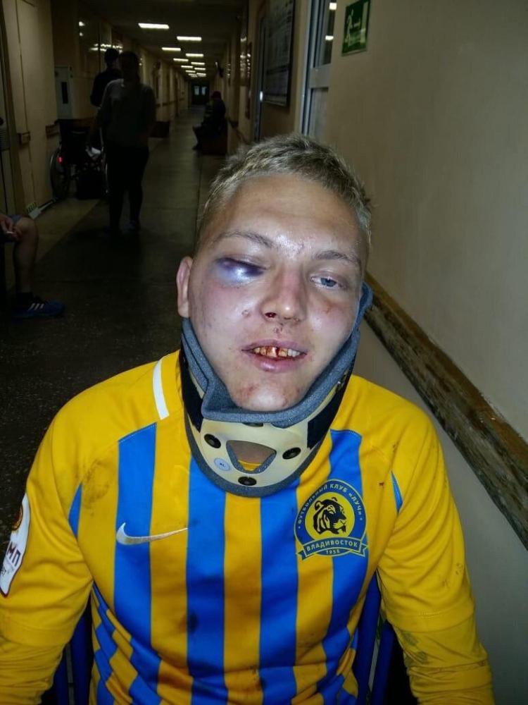 Футболист «Луча» сломал челюсть во время матча. Фото