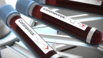 Пандемия коронавируса: данные после 30 марта